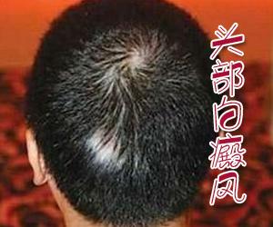 头部有白斑不治疗会怎么样
