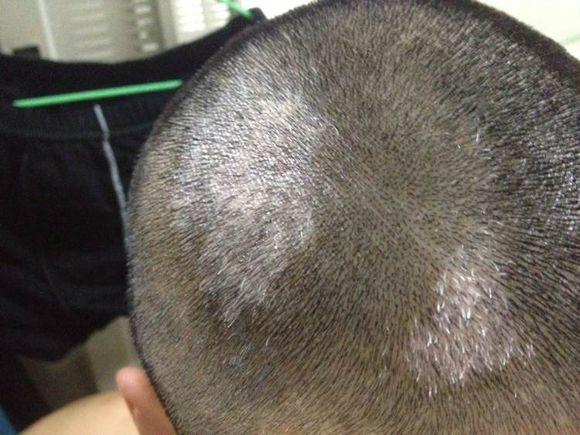 白癜风治疗费用:头部白癜风在治疗时怎么护理