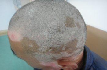 白癜风治疗费用:头部白癜风有哪些危害